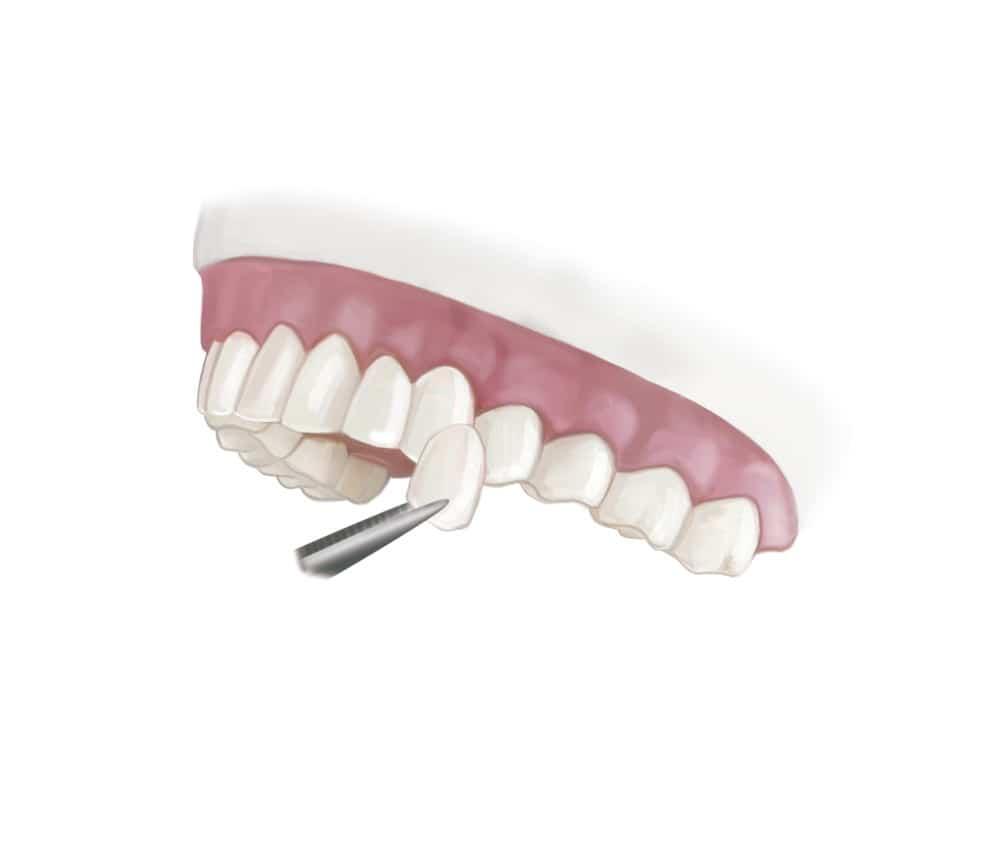 เคลือบผิวฟัน
