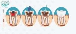 cosdentbyslc, root canal treatment, รักษาราก, รักษารากฟัน