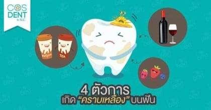 4 ตัวการเกิด คราบเหลือง บนฟัน