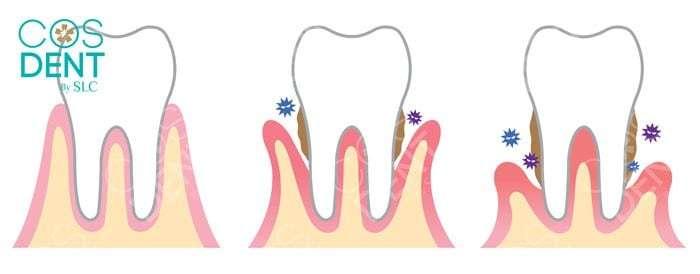 โรคเหงือก จะทำให้เกิดการสูญเสียฟันได้