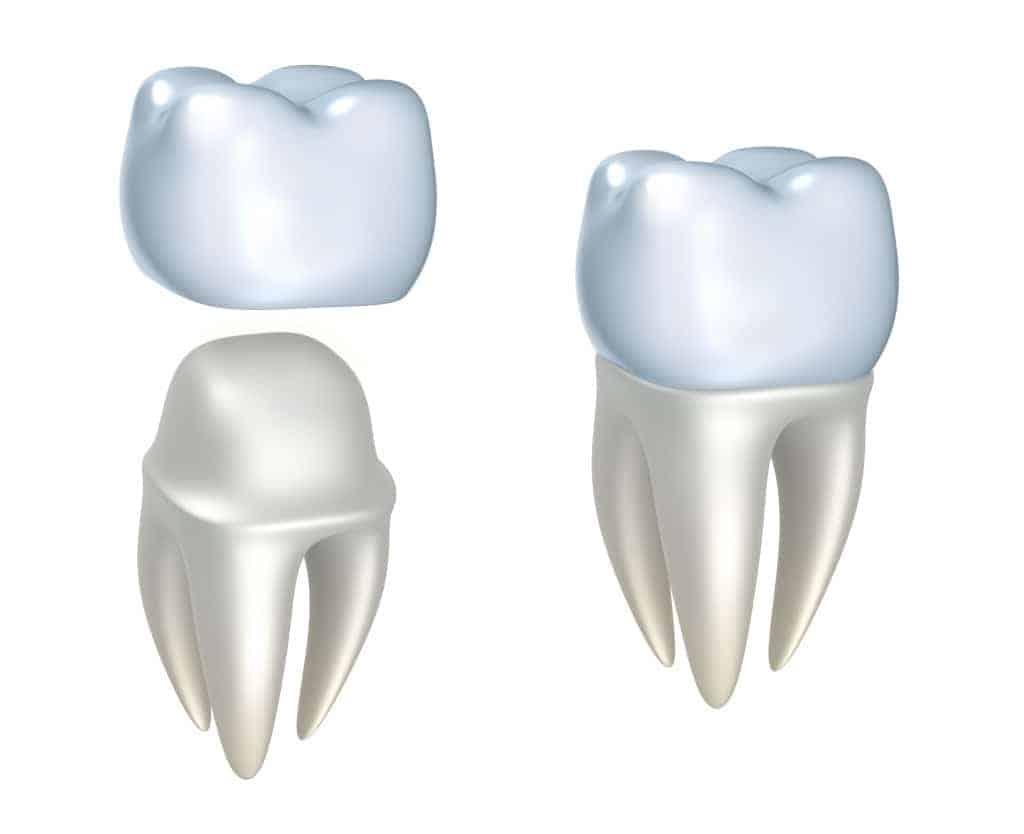 ทันตกรรมประดิษฐ์ ฟันปลอม ครอบฟันปลอม