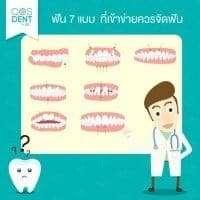 ฟันแบบไหนควรจัดฟัน