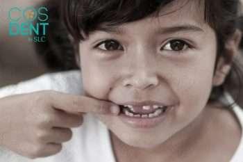 เด็ก ฟันเหลือง