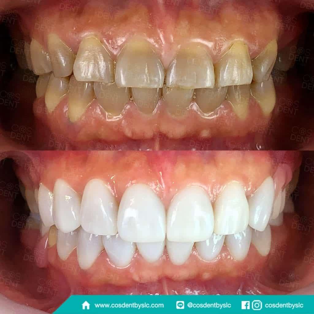 วิธีแก้ปัญหาฟันเหลือง