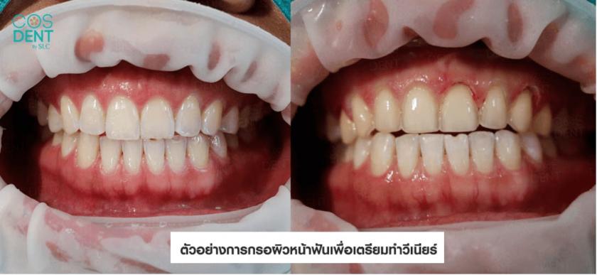 กรอหน้าฟันด้วยหรือไม่