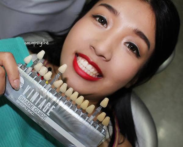รีวิวฟอกสีฟัน