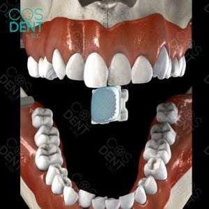 การจัดฟัน ติดเครื่องมือ