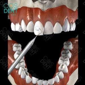 ขั้นตอนการติดเครื่องมือจัดฟัน