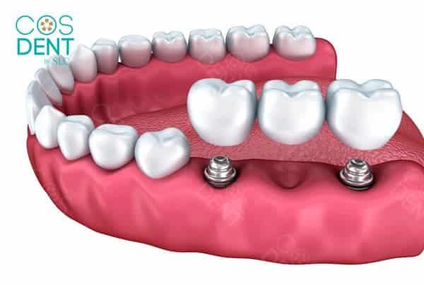 prostodontics