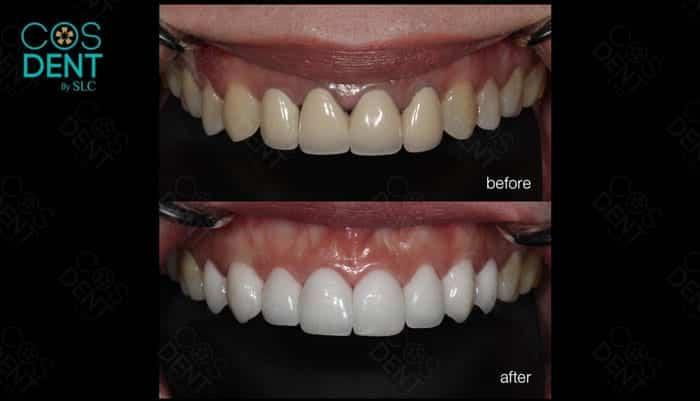 ปัญหา ฟันปลอม
