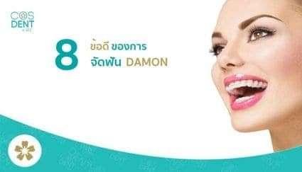 ข้อดีของการ จัดฟัน ดามอน Damon System