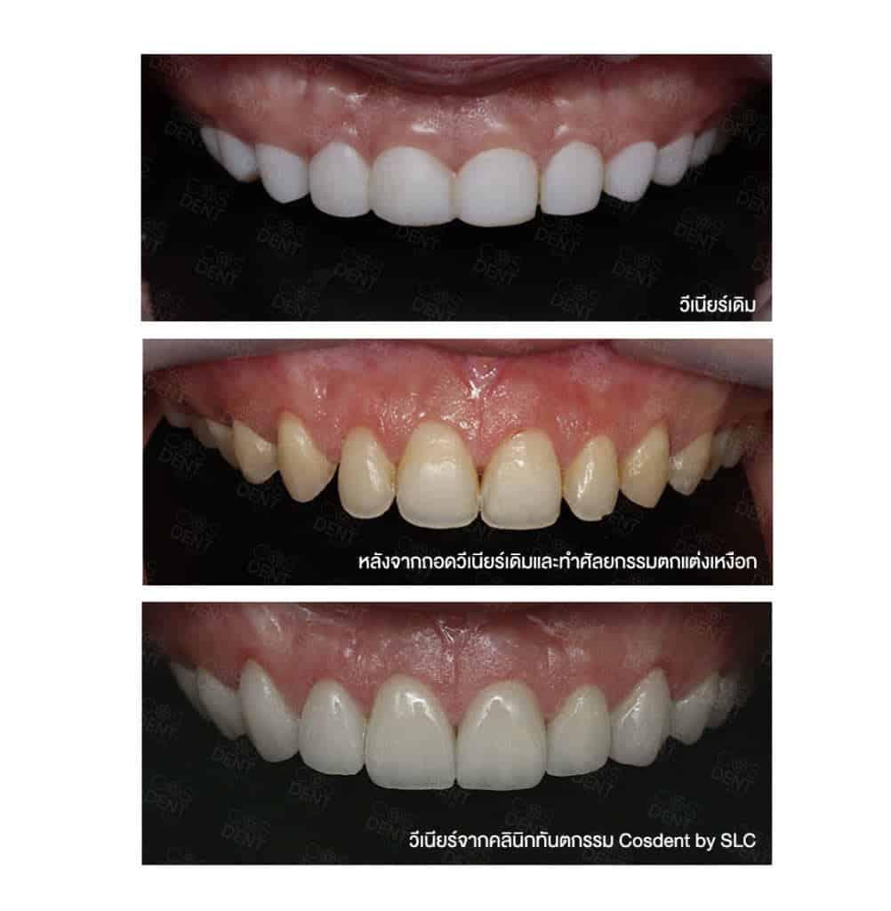 วิธีแก้ไขปัญหาฟันไม่สวย