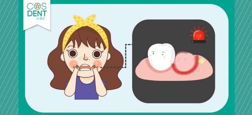 ฟันคุดไม่ผ่าได้มั้ย