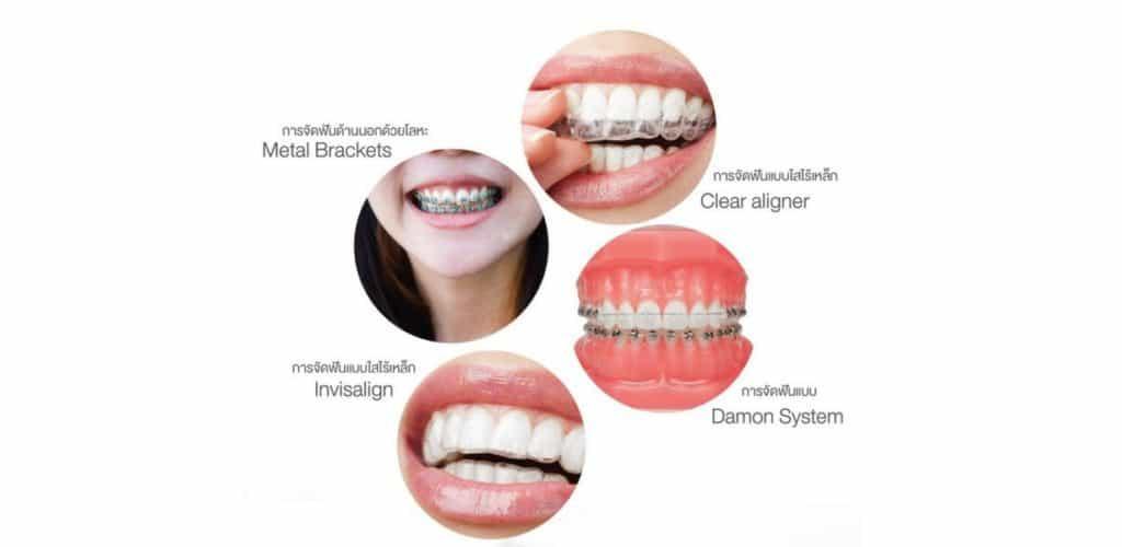 จัดฟัน มีกี่ประเภท