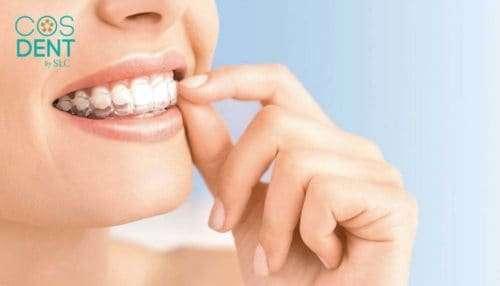 จัดฟัน ใส invisalign