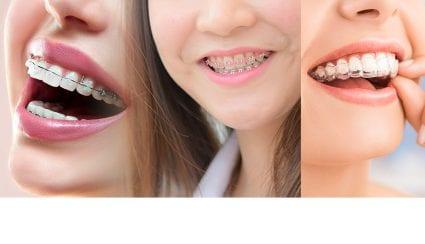 จัดฟันมีกี่แบบ
