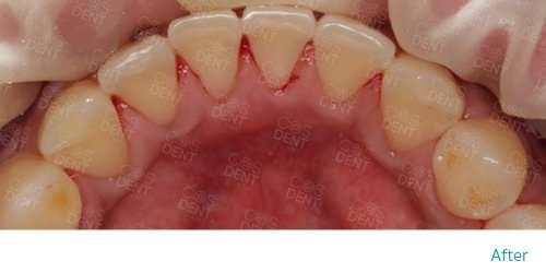 airflow หลังการขจัดคราบบนผิวฟัน
