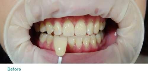 ก่อนการฟอกสีฟัน