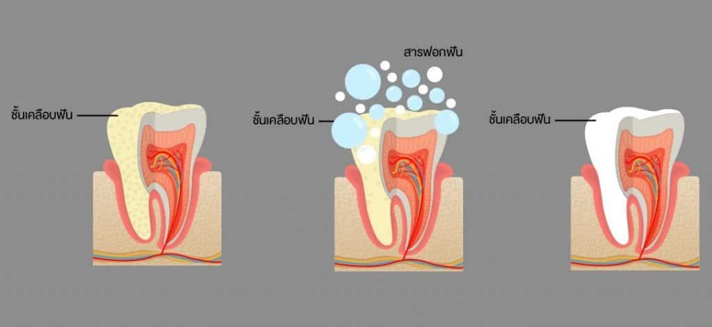 การฟอกฟันขาว
