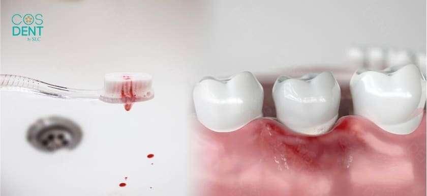 เลือดออกตอนแปรงฟัน