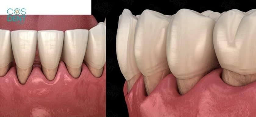 ลักษณะ โรคเหงือก เยื่อหุ้มฟันอักเสบ