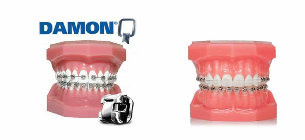 เลือกประเภทการ จัดฟัน