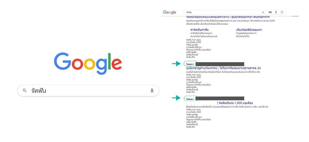 วิธีหาร้านจัดฟัน ใน google