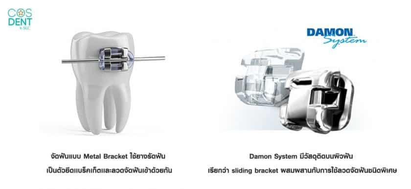 จัดฟันดามอน แตกต่างกับ จัดฟันเทียบจัดฟัน Damon และจัดฟันแบร็คเก็ต