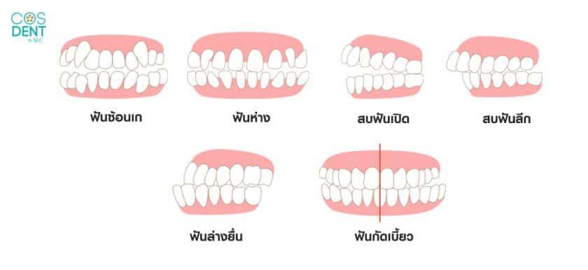 ปัญหาฟันแบบต่างๆ