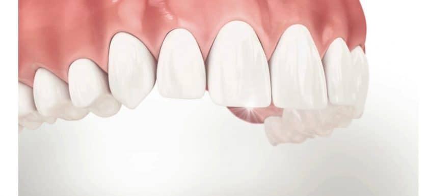 clear aligner จัดฟันใสเสร็จ