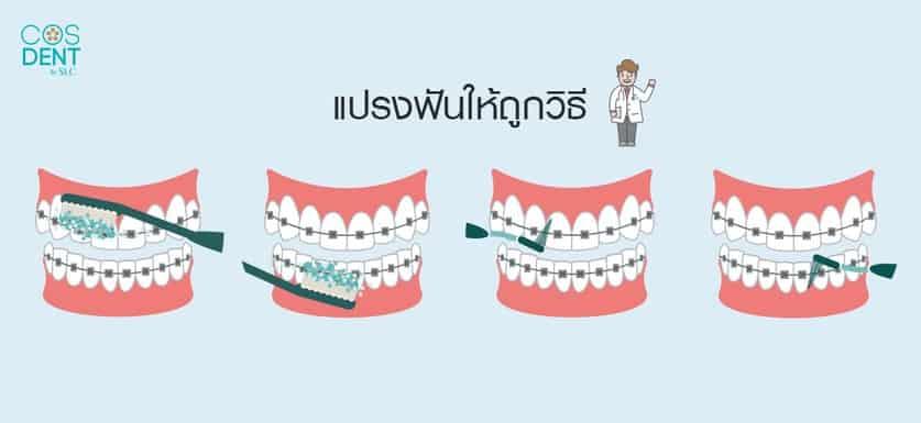 วิธีดูแลฟันขณะจัดฟัน ต้องแปรงฟันยังไง