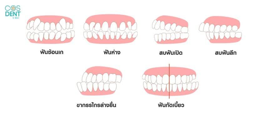 ลักษณะฟันแบบไหนที่ จัดฟัน invisalign ได้