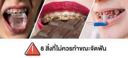 ข้อควรระวังระหว่างจัดฟัน จัดฟันห้ามกินอะไรบ้าง