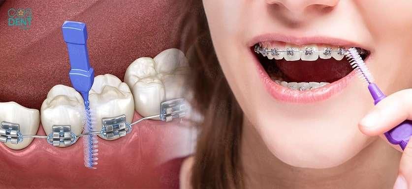 วิธีแปรงฟันขณะจัดฟัน