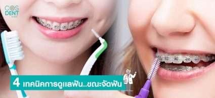 วิธีดูแลฟันขณะจัดฟัน
