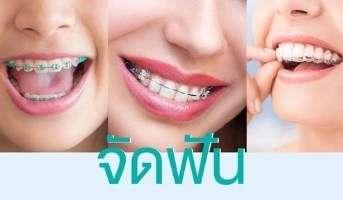 orthodontic จัดฟัน