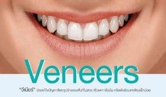 veneer ทำฟันวีเนียร์