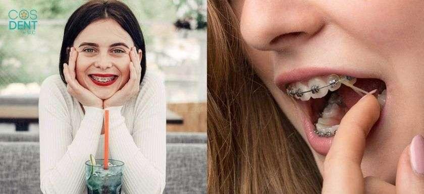 สิ่งที่ไม่ควรทำขณะจัดฟัน ไม่ถอดยาง ดื่มน้ำอัดลมเเละเครื่องดื่มที่มีความเป็นกรด