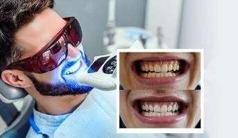 cosdent by slc ฟอกสีฟัน