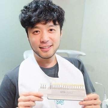 teeth whitening review คุณเบล สุพล 1