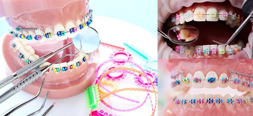 สียางจัดฟัน Elastic Ligatures